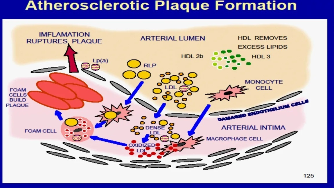 How Plaque is made